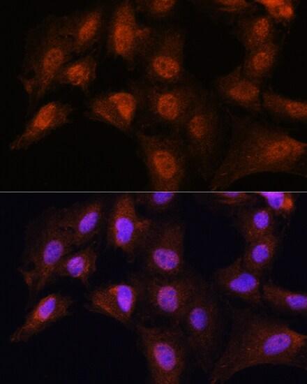 Bcl-3 Antibody in Immunocytochemistry (ICC)