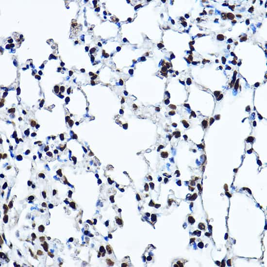 TWIST1 Antibody in Immunohistochemistry (Paraffin) (IHC (P))