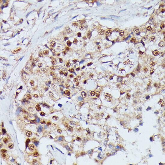 IGHMBP2 Antibody in Immunohistochemistry (Paraffin) (IHC (P))