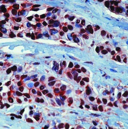 HSP90 alpha Antibody in Immunohistochemistry (IHC)