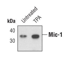 GDF15 Antibody in Western Blot (WB)