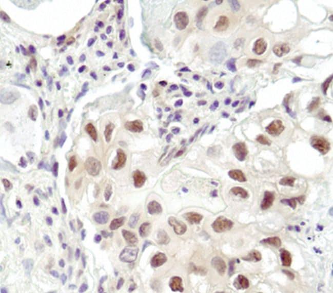 Ubiquitin Antibody in Immunohistochemistry (IHC)