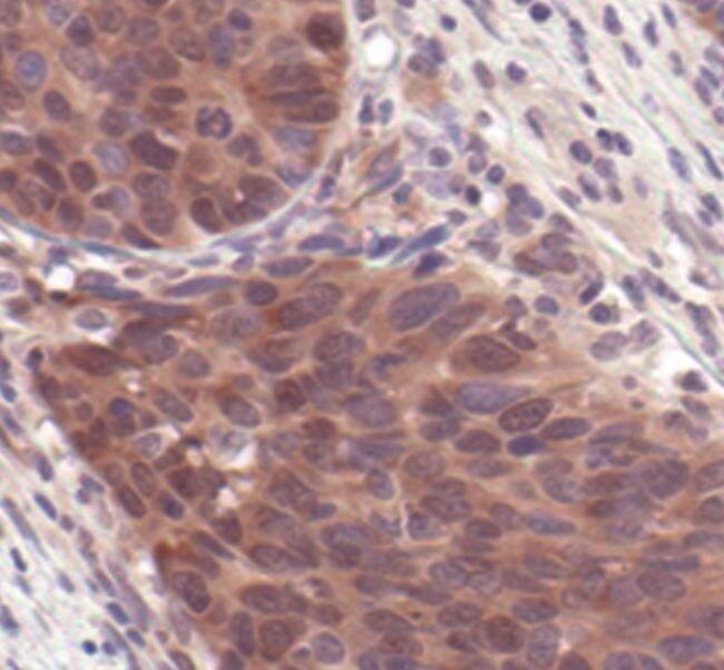 4E-BP2 Antibody in Immunohistochemistry (IHC)