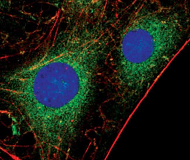 PKC alpha Antibody in Immunofluorescence (IF)