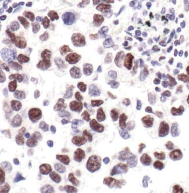 Phospho-POLR2A (Ser2, Ser5) Antibody in Immunohistochemistry (IHC)