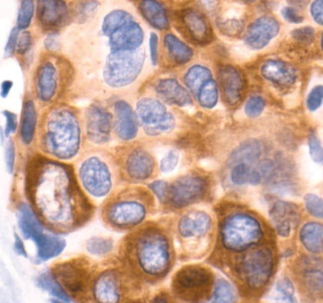Phospho-Acetyl-CoA Carboxylase (Ser79) Antibody in Immunohistochemistry (IHC)