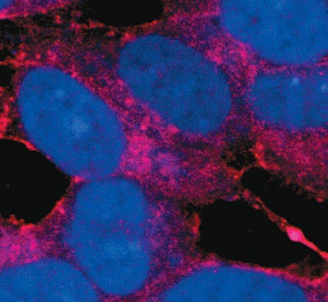 Amyloid Precursor Protein Antibody in Immunofluorescence (IF)