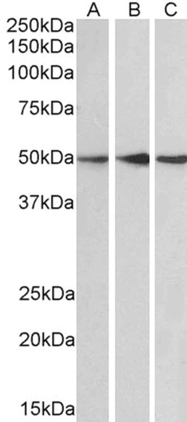PPP2R5E Antibody in Western Blot (WB)