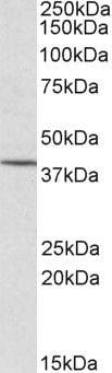 CYTIP Antibody in Western Blot (WB)