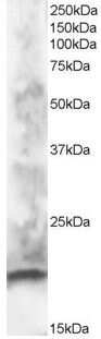CABP1 Antibody in Western Blot (WB)