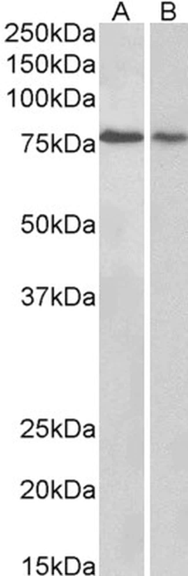 BERP Antibody in Western Blot (WB)