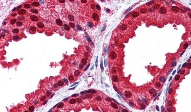 DJ-1 Antibody in Immunohistochemistry (IHC)