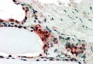 TRIP15 Antibody in Immunohistochemistry (IHC)