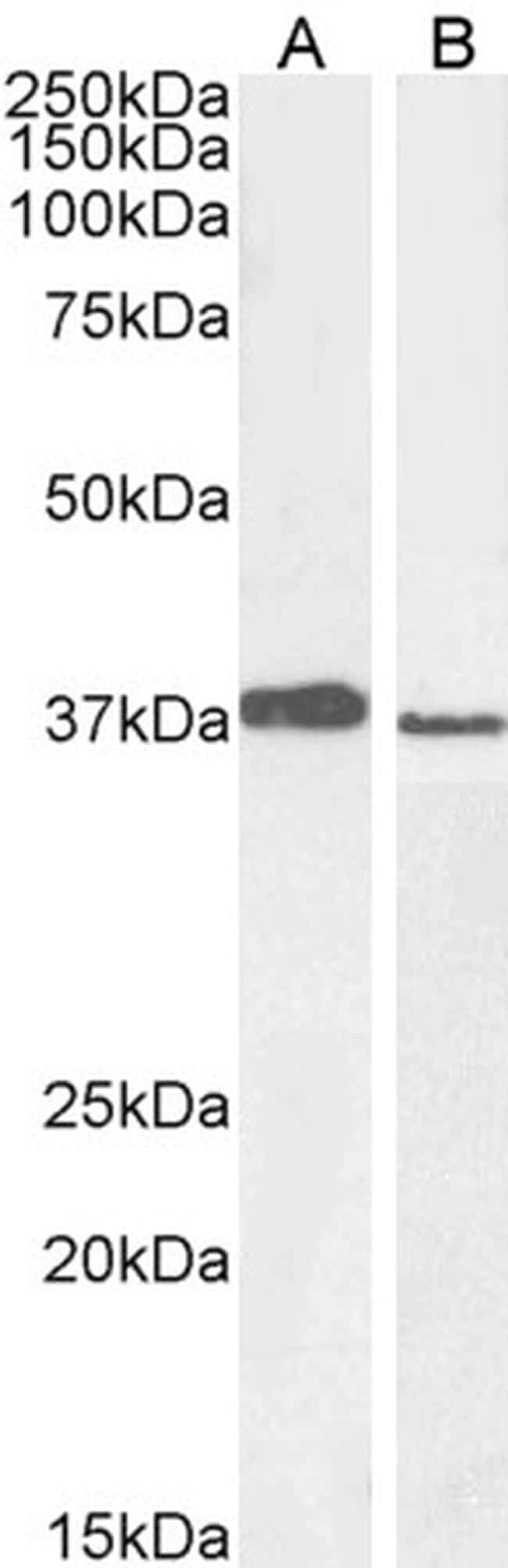 MEL18 Antibody in Western Blot (WB)