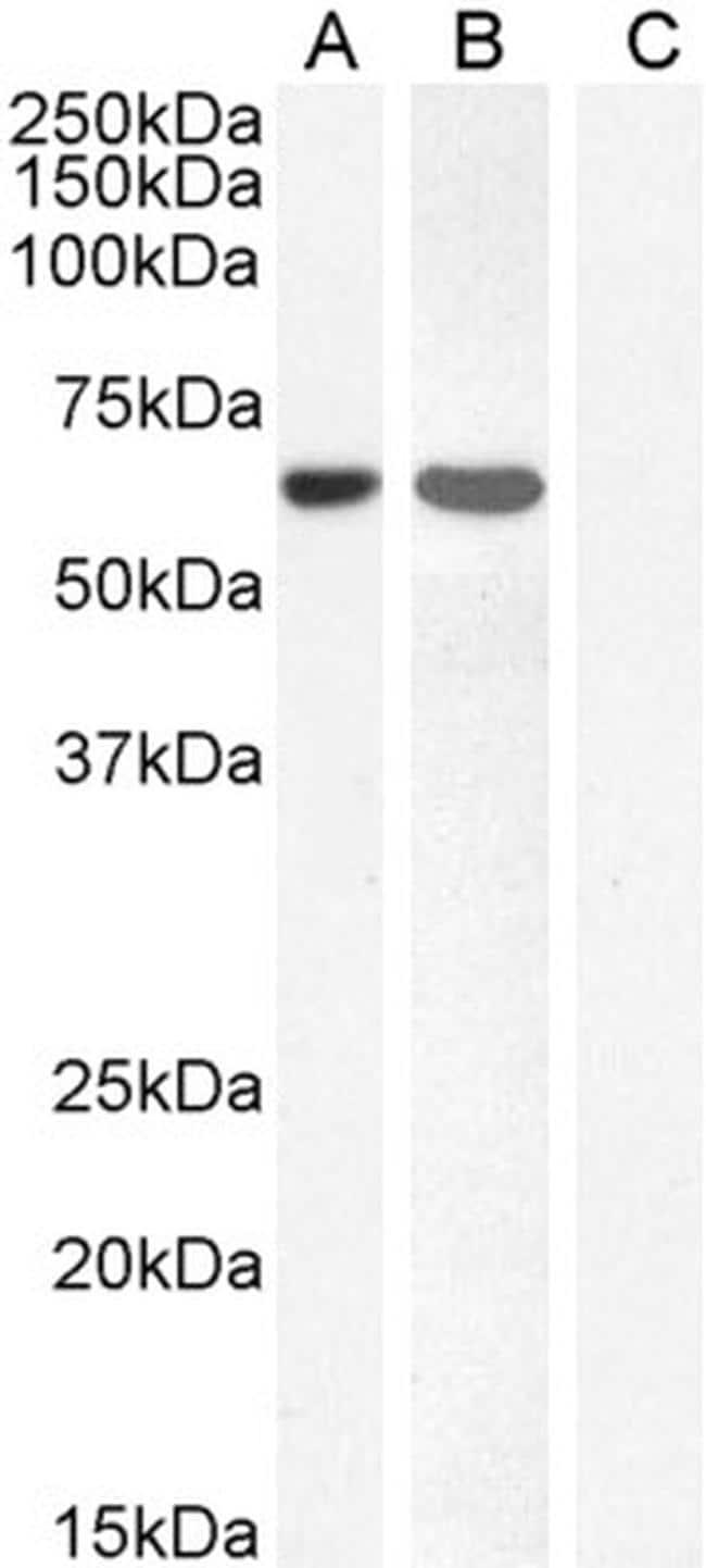 FOXC2 Antibody in Western Blot (WB)