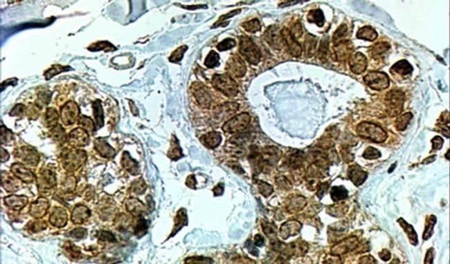 CYP7B1 Antibody in Immunohistochemistry (IHC)