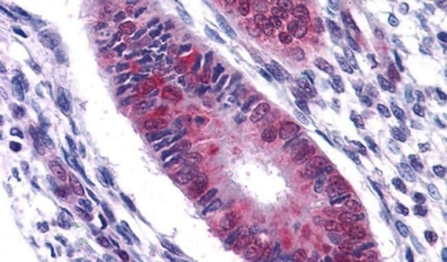 DDX5 Antibody in Immunohistochemistry (IHC)