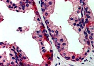 JIK Antibody in Immunohistochemistry (IHC)