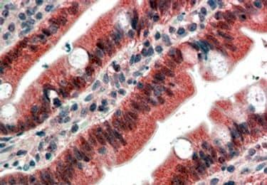 FGFR1 Antibody in Immunohistochemistry (IHC)