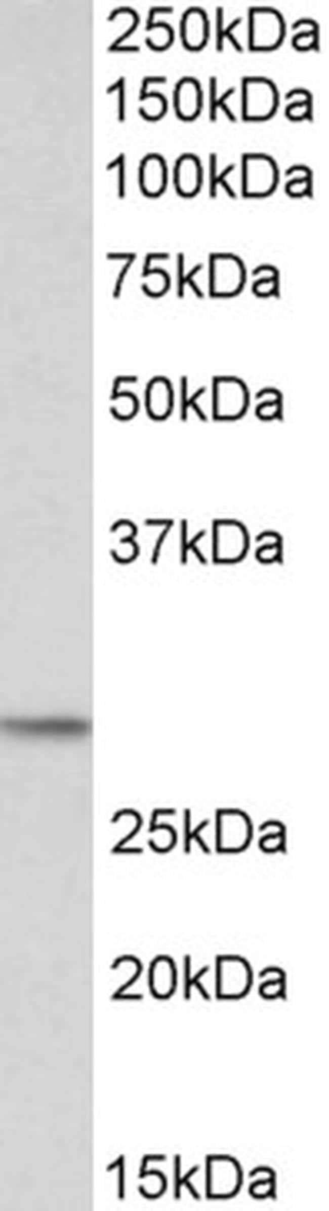POMC Antibody in Western Blot (WB)