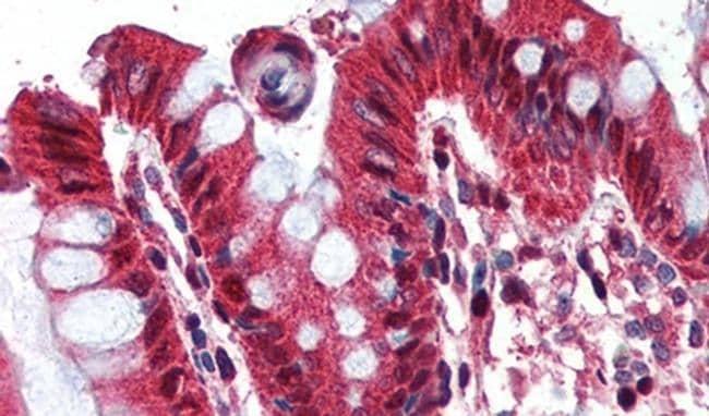 Ghrelin Antibody in Immunohistochemistry (IHC)