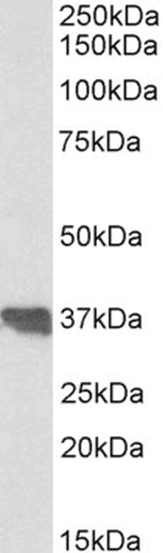 Apolipoprotein J Antibody in Western Blot (WB)