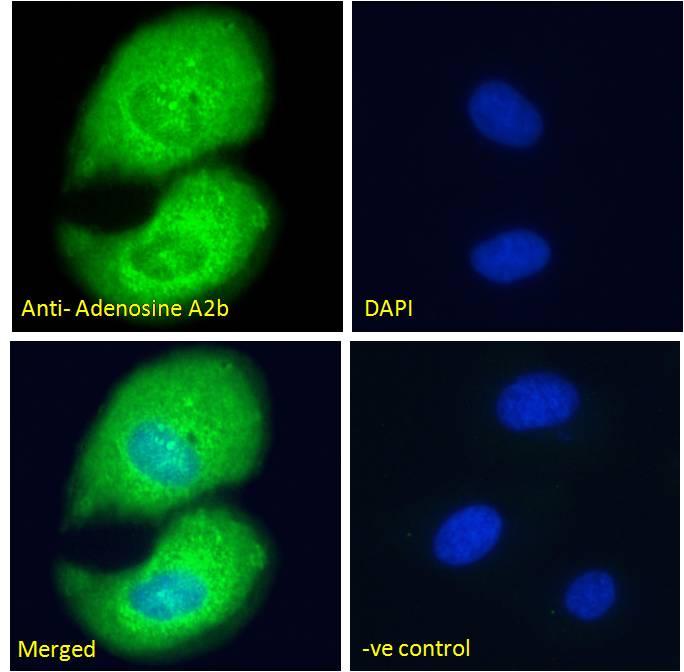 ADORA2B Antibody in Immunofluorescence (IF)