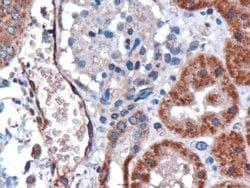 DARC Antibody in Immunohistochemistry (IHC)