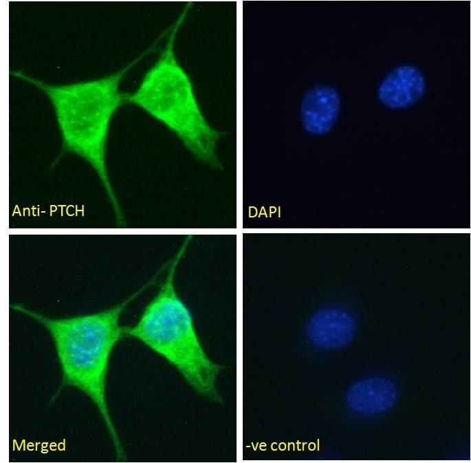 PTCH Antibody in Immunofluorescence (IF)