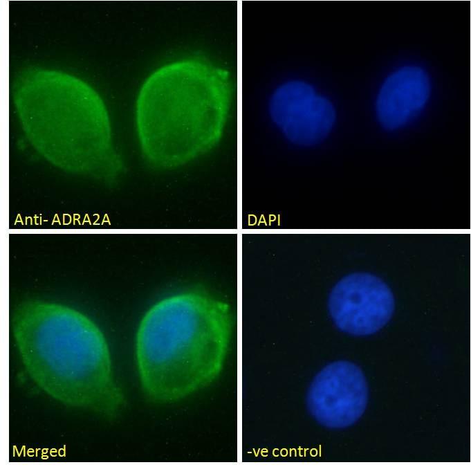 alpha-2a Adrenergic Receptor Antibody in Immunocytochemistry (ICC)