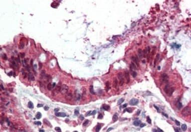 Ezrin Antibody in Immunohistochemistry (IHC)