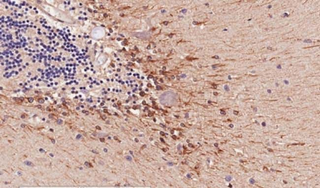 COMT Antibody in Immunohistochemistry (IHC)
