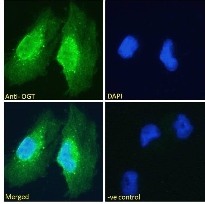 OGT Antibody in Immunofluorescence (IF)