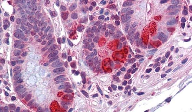 PDIA2 Antibody in Immunohistochemistry (IHC)