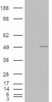 CK1 epsilon Antibody in Western Blot (WB)