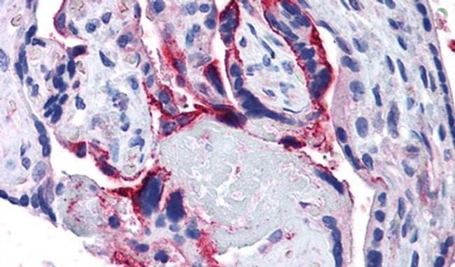 APH1 Antibody in Immunohistochemistry (IHC)