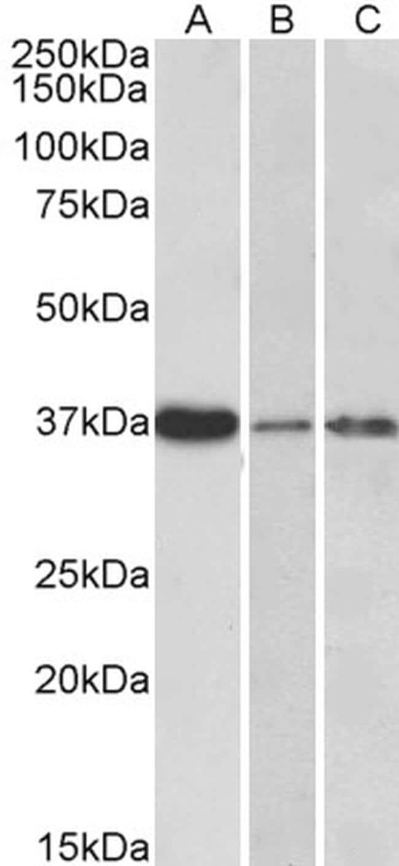 IL-12 p40 Antibody in Western Blot (WB)
