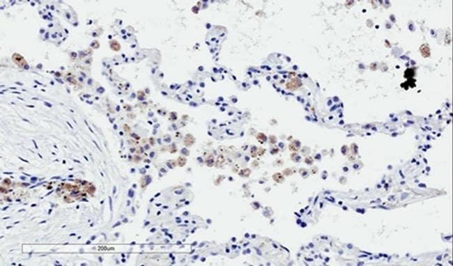 TREM2 Antibody in Immunohistochemistry (IHC)