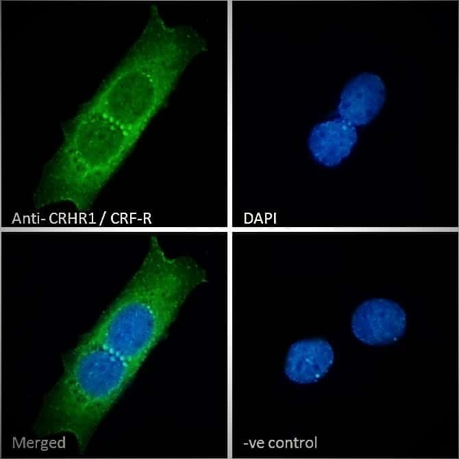 CRHR1 Antibody in Immunocytochemistry (ICC/IF)