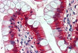 N-Ras Antibody in Immunohistochemistry (IHC)