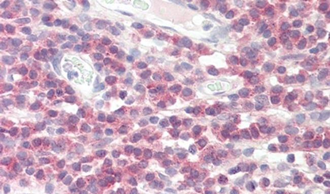 DPM1 Antibody in Immunohistochemistry (IHC)
