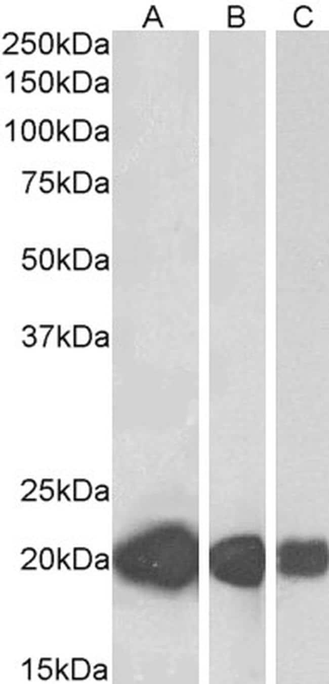 CSRP3 Antibody in Western Blot (WB)
