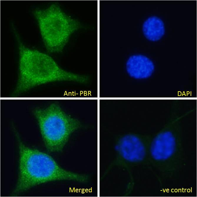TSPO Antibody in Immunofluorescence (IF)