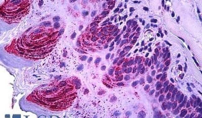 TSPO Antibody in Immunohistochemistry (IHC)