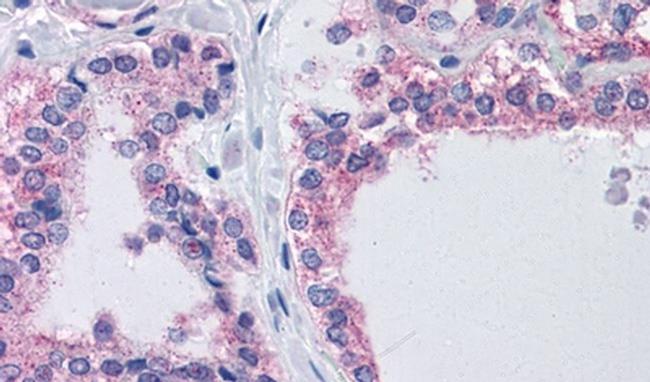 CENTG1 Antibody in Immunohistochemistry (IHC)