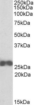 D4-GDI Antibody in Western Blot (WB)