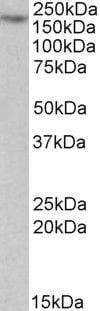 MYO5A Antibody in Western Blot (WB)