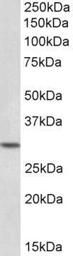 HOXC8 Antibody in Western Blot (WB)