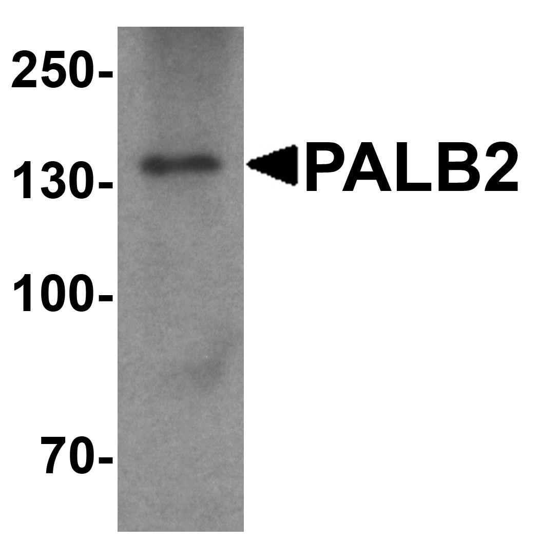 PALB2 Antibody in Western Blot (WB)
