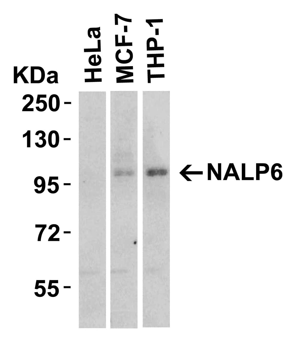NLRP6 Antibody in Western Blot (WB)